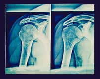 Retro look Xray. Vintage looking Medical X-Ray imaging of a shoulder, used in diagnostic radiology of skeleton bones stock photography