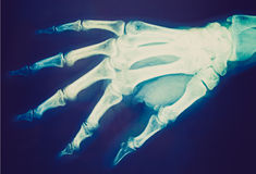 Retro look Xray Stock Images
