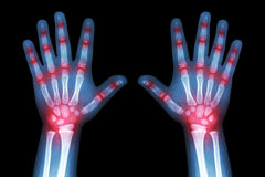 Reumatoïde artritis (de handen van het Röntgenstraal zowel kind als veelvoudige gezamenlijke artritis) stock afbeeldingen