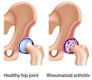 Reumatoïde artritis van heupverbinding vector illustratie