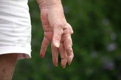 Reumatoïde artritishand Stock Foto's