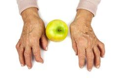 Reumatoïde artritishanden en vruchten Royalty-vrije Stock Foto