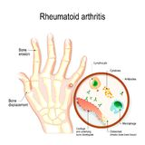 Reumatoïde Artritisra is een auto immune ziekte en een ontstekingstype van artritis royalty-vrije illustratie