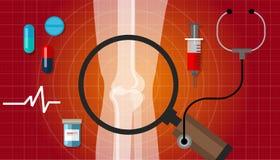 Reumatoïde illustratie van de het probleemgezondheidszorg van het artritis de gezamenlijke been Stock Fotografie