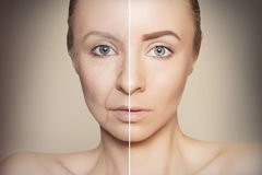 Revitalization concept face before and after. Tow halves of caucasian woman face Stock Photography