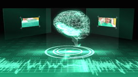 Revolving brain graphic with interface with surgery clips stock footage