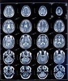 rezonans medyczny zdrowia fotografia stock