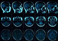 Rezonansu magnetycznego obraz cyfrowy mózg z czaszką MRI głowy obraz cyfrowy na ciemnego tła błękitnym kolorze obraz royalty free