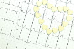 Rezultaty elektrokardiografia Zdjęcie Stock