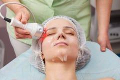 Rf skin tightening, young woman. Stock Image