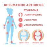 Rheumatism infographic. Bone disease on foot, hand. And elbow. Body pain. Damaged joints. Symptoms. Isolated vector illustration in cartoon style stock illustration