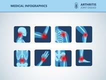 Free Rheumatism Or Rheumatic Disorder Medical Set. Arthritis Joint Pain. Rheumatology Vector Infographics Royalty Free Stock Photos - 139069928