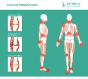 Rheumatism or rheumatic disorder medical posters. Arthritis joint pain. Rheumatology vector infographics. Rheumatism or rheumatic disorder medical posters royalty free illustration