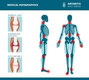 Rheumatism or rheumatic disorder medical posters. Arthritis joint pain. Rheumatology vector infographics. Rheumatism or rheumatic disorder medical posters stock illustration