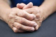 Rheumatoid χέρια αρθρίτιδας Στοκ Εικόνες