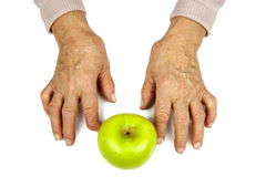Rheumatoid χέρια και φρούτα αρθρίτιδας Στοκ φωτογραφίες με δικαίωμα ελεύθερης χρήσης