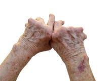 Rheumatoid Arthritis. Close up image of female hands with arthritis royalty free stock photography