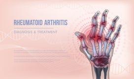 Free Rheumatoid Arthritis Banner Hand Joints Deformation. Royalty Free Stock Images - 164530579