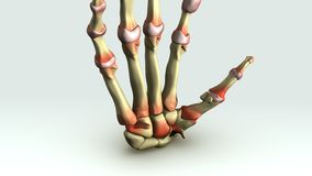 Rheumatoid arthritis Royalty Free Stock Photos