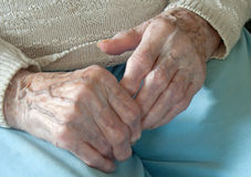 Rheumatoid Arthritis Royalty Free Stock Image
