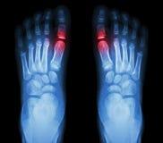 Rheumatoid arthritis , Gouty arthritis. X-ray child's foots and arthritis at metatarsophalangeal joint (Big toe area Royalty Free Stock Photography