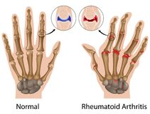 Rheumatoid arthritis of hand. Rheumatoid arthritis of finger joints, eps8 Royalty Free Stock Photo