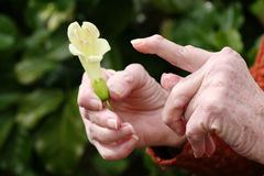 Rheumatoid arthritis hand and a flower. Living with pain series. Senior woman's hands holding a flower, her hands are mishapen with rheumatoid arthritis nodules royalty free stock image