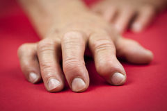 Rheumatoid arthritis hand. S. Red background Stock Image