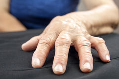Rheumatoid Arthritis hand Royalty Free Stock Image