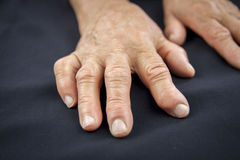Rheumatoid arthritis hand Royalty Free Stock Photo