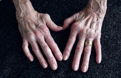 Rheumatica, Womans hand with heumatoid arthritis hands and fingers since forty year since first diagnosis. stock photo