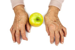 Rheumatoid arthritis hands and fruits Royalty Free Stock Photo