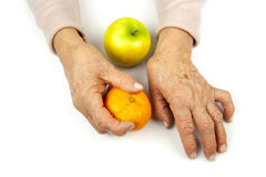 Rheumatoid arthritis hands and fruits Royalty Free Stock Images