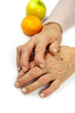 Rheumatoid arthritis hands and fruits Royalty Free Stock Image