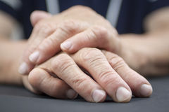 Rheumatoid Arthritis hands Royalty Free Stock Photo