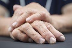 Rheumatoid Arthritis hands royalty free stock photo