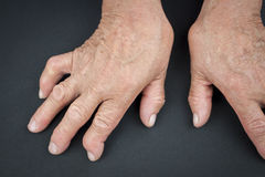 Rheumatoid arthritis hands. Macro. Deformed finger Stock Photography