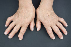Rheumatoid Arthritis hands. Hands Of Woman Deformed From Rheumatoid Arthritis Stock Image
