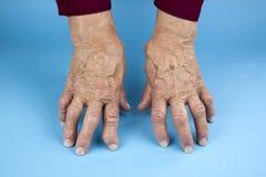 Rheumatoid Arthritis hands. Hands Of Woman Deformed From Rheumatoid Arthritis. Blue background Stock Photo