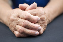 Rheumatoid Arthritis hands. Hands Of Woman Deformed From Rheumatoid Arthritis. Blue background Stock Images
