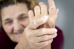 Rheumatoid Arthritis. Hands Of Woman Deformed From Rheumatoid Arthritis holding pills. Blurred portrait Royalty Free Stock Images