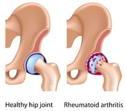 Rheumatoid arthritis of hip joint. With synovial membrane inflammation and cartilage and bones erosion, eps8 Royalty Free Stock Photography