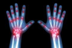 Rheumatoid arthritis ( X-ray both child hands and multiple joint arthritis ) Stock Images