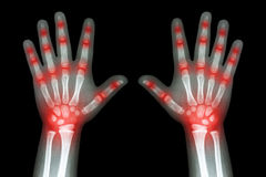 Rheumatoid arthritis ( X-ray both child hands and multiple joint arthritis ) Stock Photos