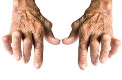rheumatoid artrit Arkivfoton