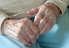 rheumatoid artrit Royaltyfri Bild