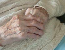 rheumatoid artrit Arkivfoto