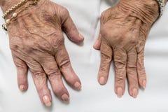 Rheumatoide Arthritis, ältere Hände stockfotos