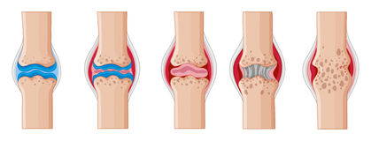 Rheumatoide Arthritis in den menschlichen Gelenken stock abbildung