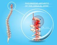 Rheumatoide Arthritis des zervikalen Dorn-Vektors lizenzfreie abbildung
